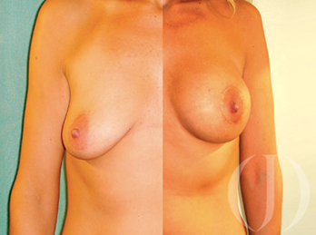 breast-lift-with-protesis