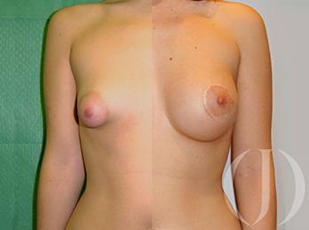 tuberous-breast