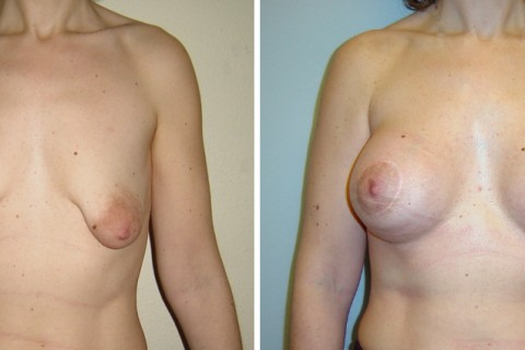 Tuberous breast – Case 1 A