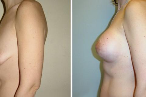 Tuberous breast – Case 1 B