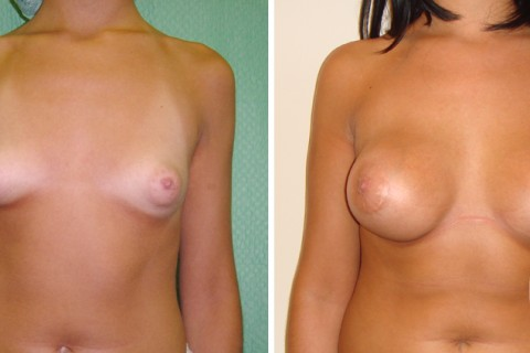 Tuberous breast – Case 10 A