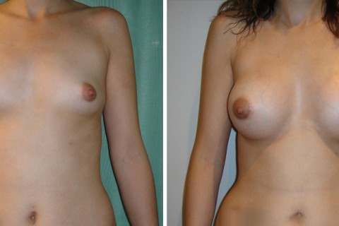 Breast Augmentation A – Case 9