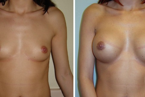 Breast Augmentation R – Case 9 A