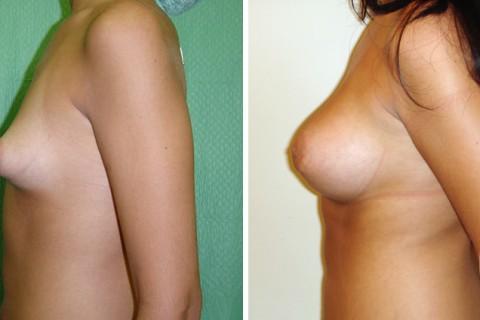 Tuberous breast – Case 10 B