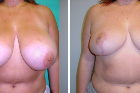 Breast Reduction – Case 11
