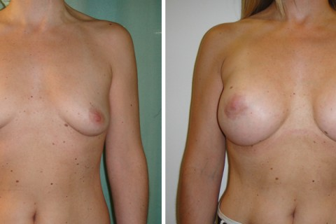 Breast Augmentation A – Case 10 A