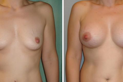 Breast Augmentation R – Case 10 A