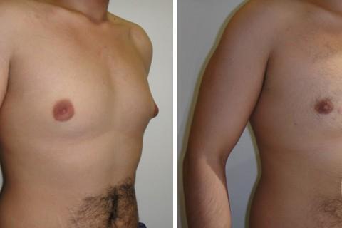 Gynecomastia – Case 9