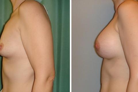 Breast Augmentation R — Case 10 B