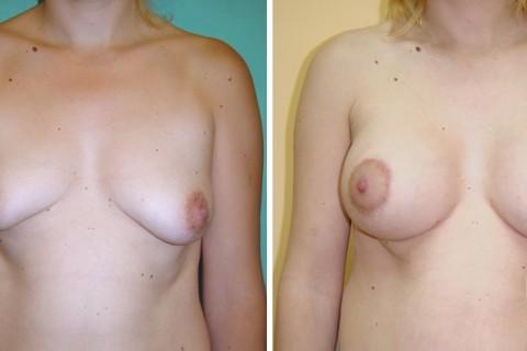 Tuberous breast — Case 11