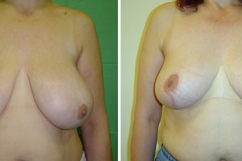 Breast Reduction — Case 12