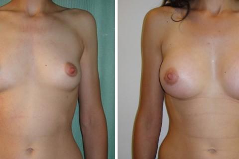 Breast Augmentation A – Case 11