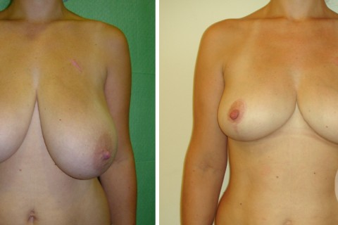 Breast Reduction — Case 13