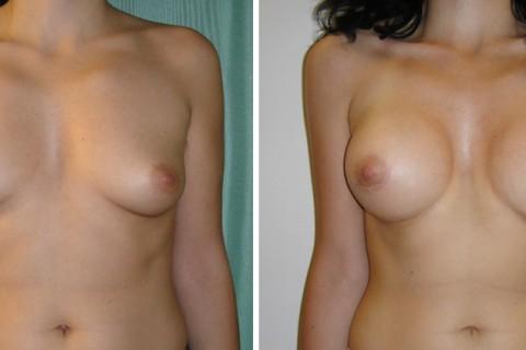 Breast Augmentation A – Case 12