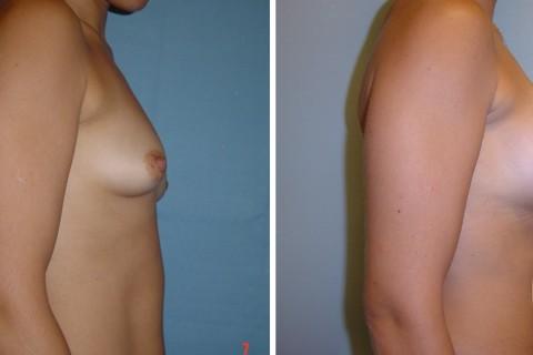Tuberous breast — Case 12