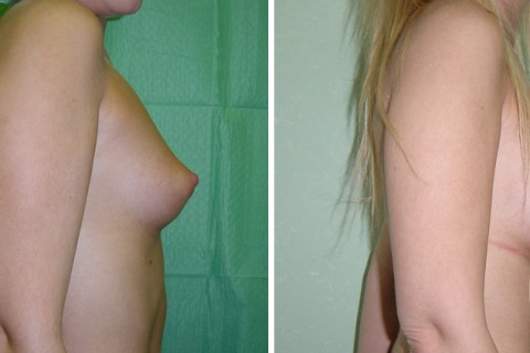 Breast Augmentation R – Case 12 B