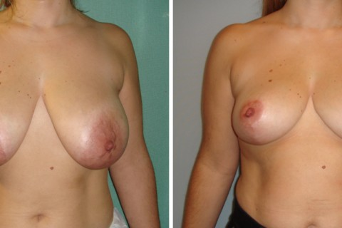 Breast Reduction — Case 14