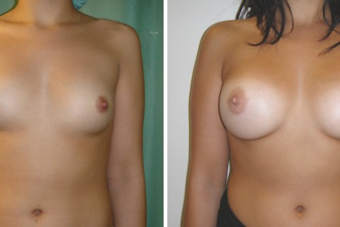 Breast Augmentation A – Case 13 A
