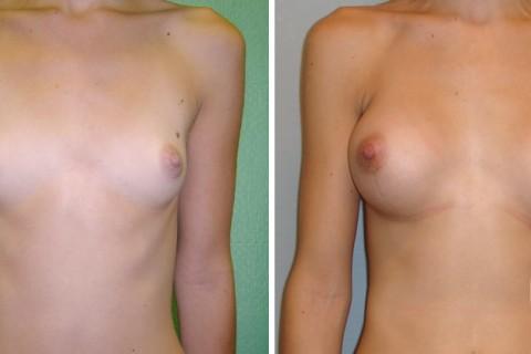 Breast Augmentation R – Case 13 A