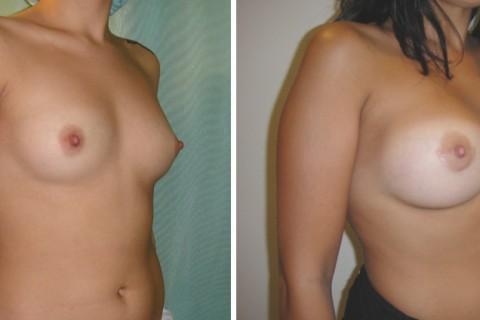 Breast Augmentation A – Case 13 B