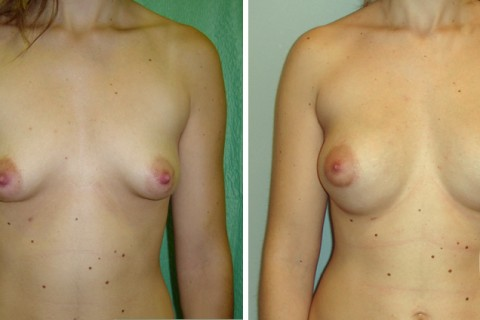 Tuberous breast – Case 14 A