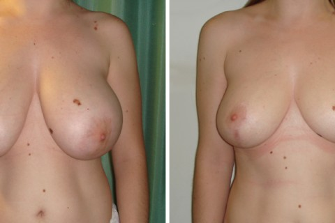Breast Reduction — Case 15