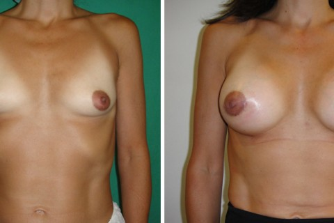 Breast Augmentation A – Case 14 A