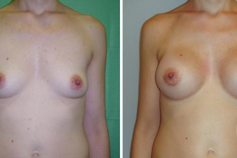 Breast Augmentation R – Case 14 A