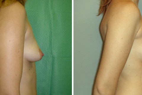 Tuberous breast – Case 14 B