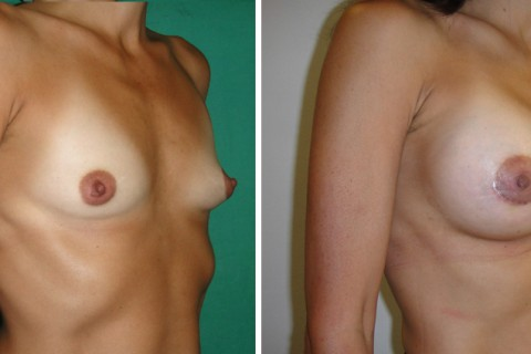 Breast Augmentation A – Case 14 B