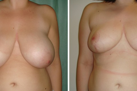 Breast Reduction — Case 16