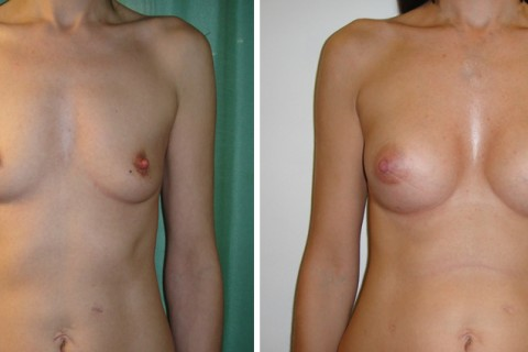 Breast Augmentation A – Case 15 A