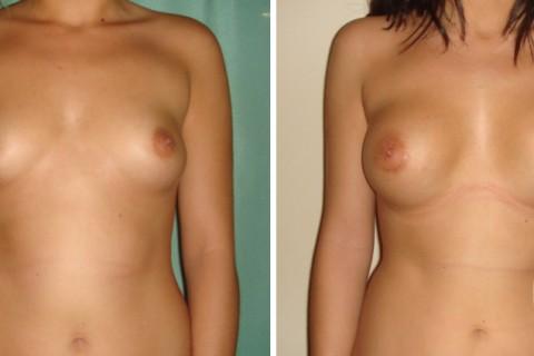 Breast Augmentation R – Case 15