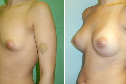 Tuberous breast – Case 15 B
