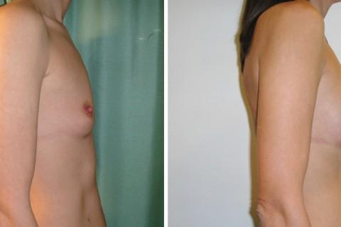 Breast Augmentation A – Case 15 B