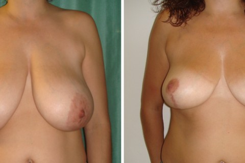 Breast Reduction – Case 17