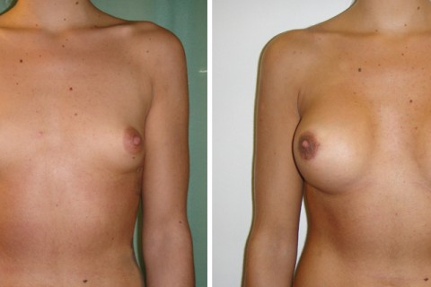 Breast Augmentation A – Case 16 A