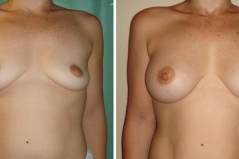 Breast Augmentation R – Case 16 A