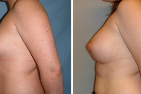 Tuberous breast – Case 16 B