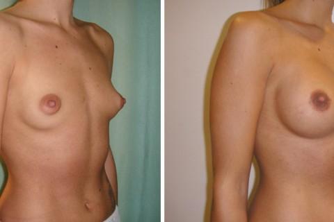Breast Augmentation A – Case 16 B