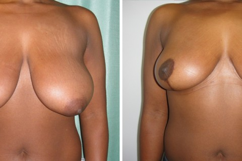 Breast Reduction — Case 18