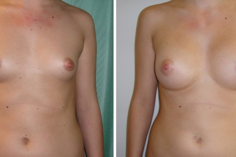 Breast Augmentation A – Case 17 A