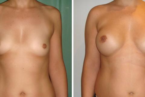 Breast Augmentation R – Case 17 A