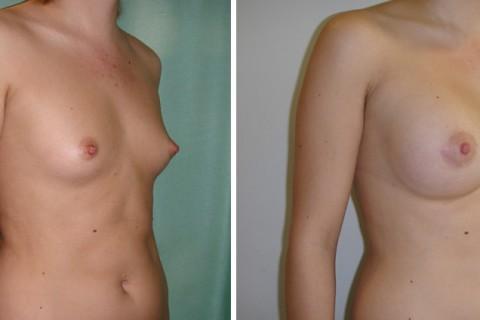 Breast Augmentation A – Case 17 B
