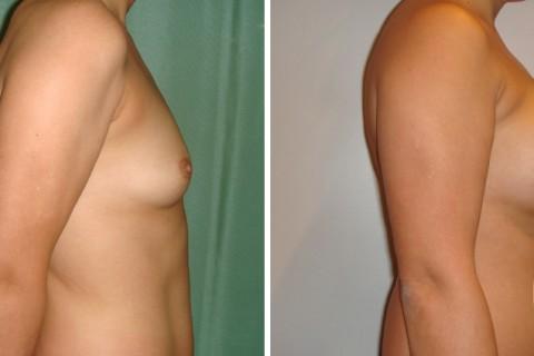 Breast Augmentation R – Case 17 B