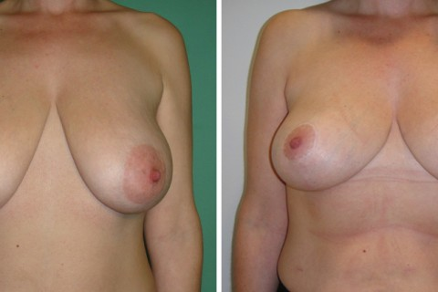Breast Reduction – Case 19 A