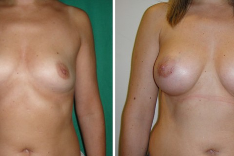 Breast Augmentation A – Case 18 A