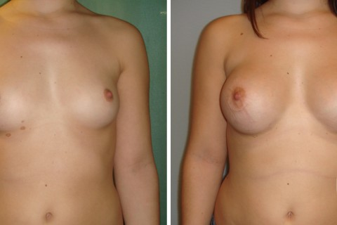 Breast Augmentation R – Case 18 A