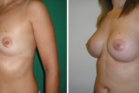 Breast Augmentation A – Case 18 B