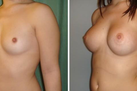 Breast Augmentation R – Case 18 B